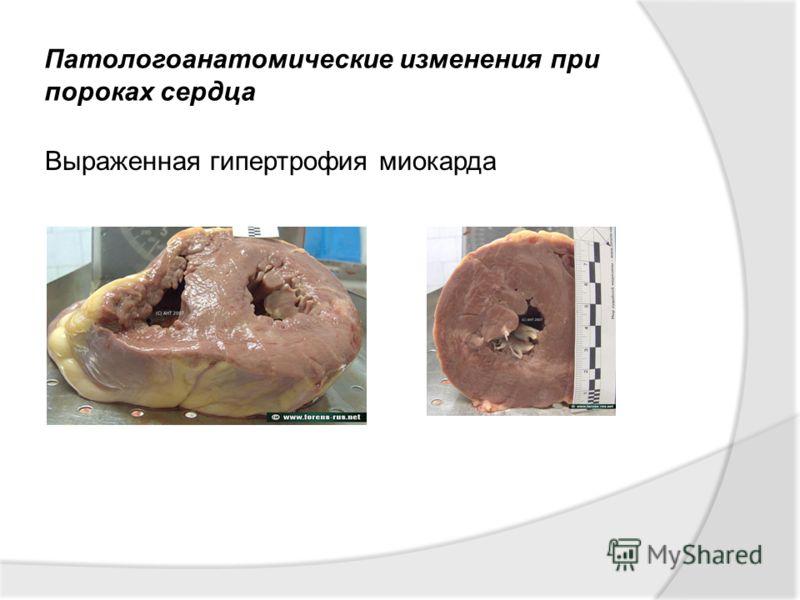 Патологоанатомические изменения при пороках сердца Выраженная гипертрофия миокарда