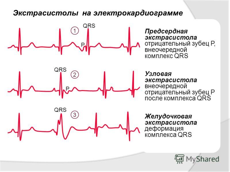 Экстрасистолы на электрокардиограмме 1 2 3 Предсердная экстрасистола отрицательный зубец Р, внеочередной комплекс QRS Узловая экстрасистола внеочередной отрицательный зубец Р после комплекса QRS Желудочковая экстрасистола деформация комплекса QRS QRS