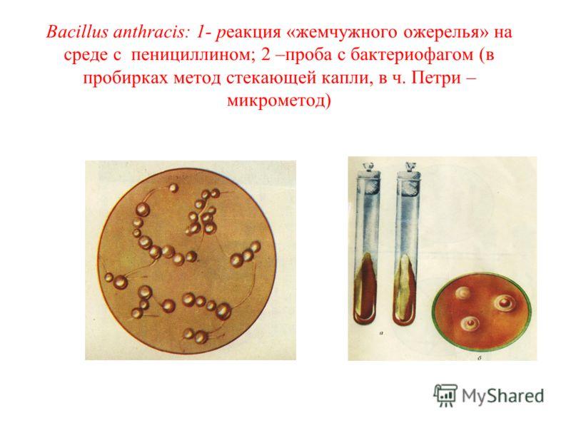 Bacillus anthracis: 1- реакция «жемчужного ожерелья» на среде с пенициллином; 2 –проба с бактериофагом (в пробирках метод стекающей капли, в ч. Петри – микрометод)
