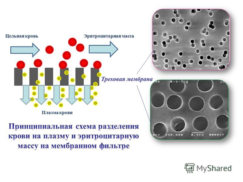Цельная кровь Эритроцитарная масса Плазма крови Трековая мембрана