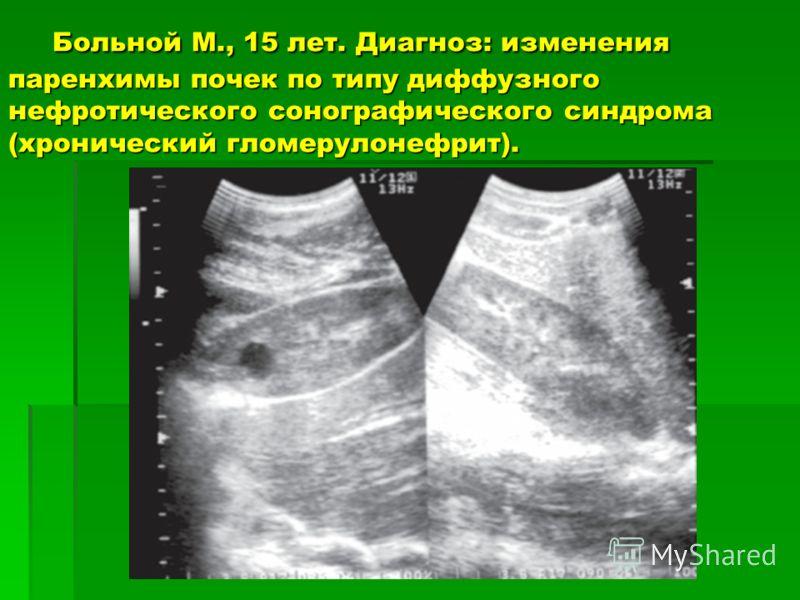 Больной М., 15 лет. Диагноз: изменения паренхимы почек по типу диффузного нефротического сонографического синдрома (хронический гломерулонефрит). Больной М., 15 лет. Диагноз: изменения паренхимы почек по типу диффузного нефротического сонографическог