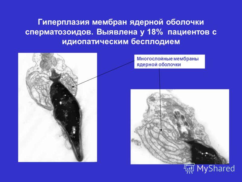 Гиперплазия мембран ядерной оболочки сперматозоидов. Выявлена у 18% пациентов с идиопатическим бесплодием Многослойные мембраны ядерной оболочки