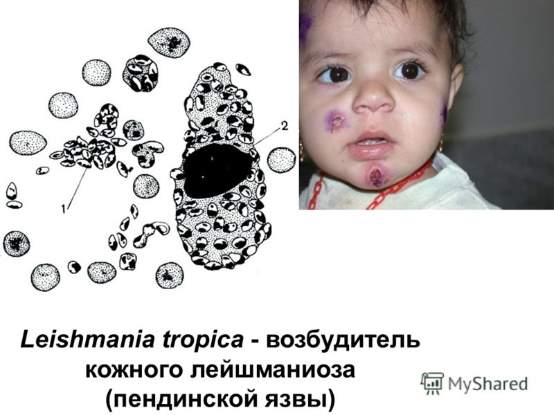 Leishmania tropica - возбудитель кожного лейшманиоза (пендинской язвы)