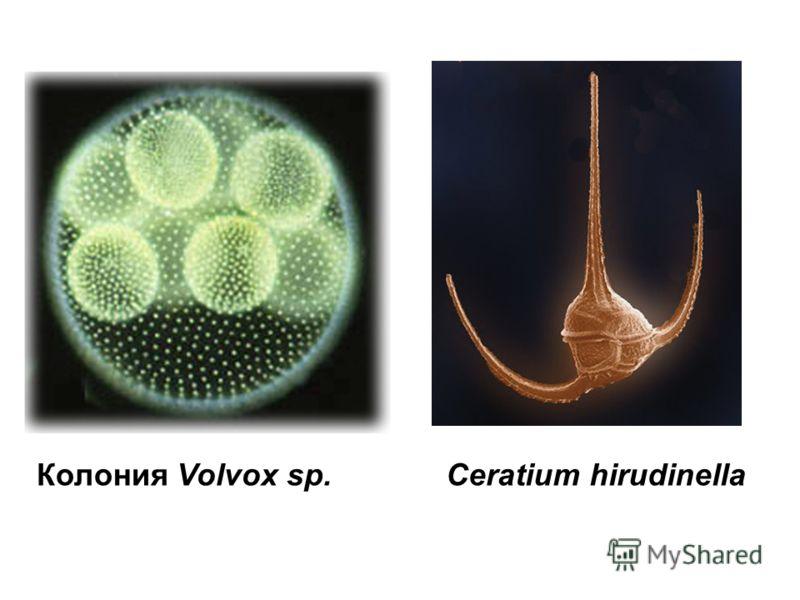 Колония Volvox sp.Ceratium hirudinella