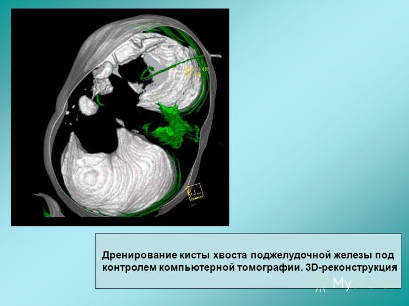Дренирование кисты хвоста поджелудочной железы под контролем компьютерной томографии. 3D-реконструкция