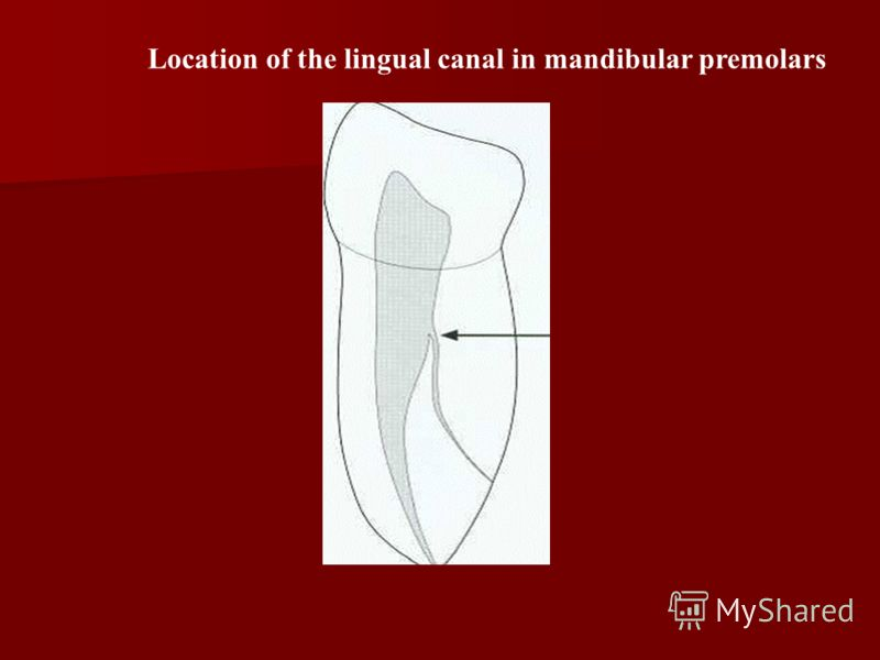 Location of the lingual canal in mandibular premolars