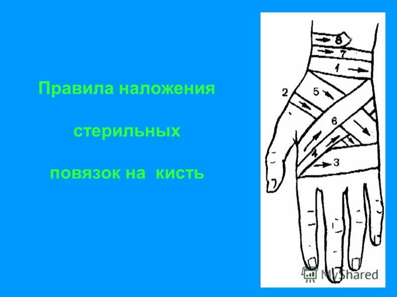 Правила наложения стерильных повязок на кисть
