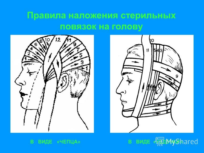 Правила наложения стерильных повязок на голову В ВИДЕ «ЧЕПЦА»В ВИДЕ «УЗДЕЧКИ»