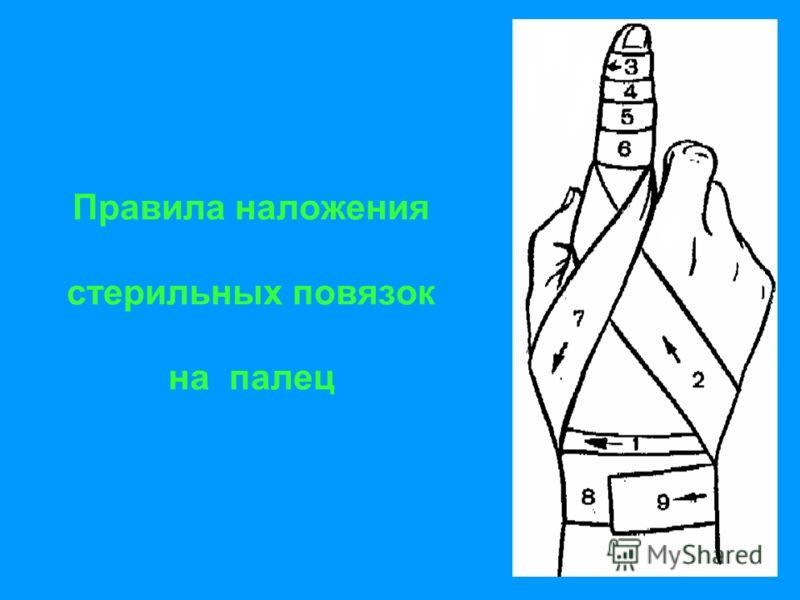 Правила наложения стерильных повязок на палец