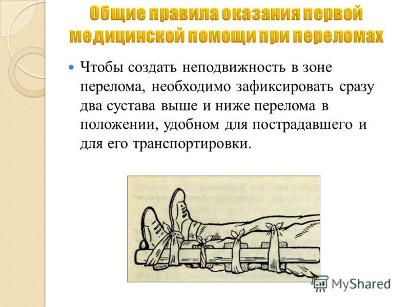 Чтобы создать неподвижность в зоне перелома, необходимо зафиксировать сразу два сустава выше и ниже перелома в положении, удобном для пострадавшего и для его транспортировки.
