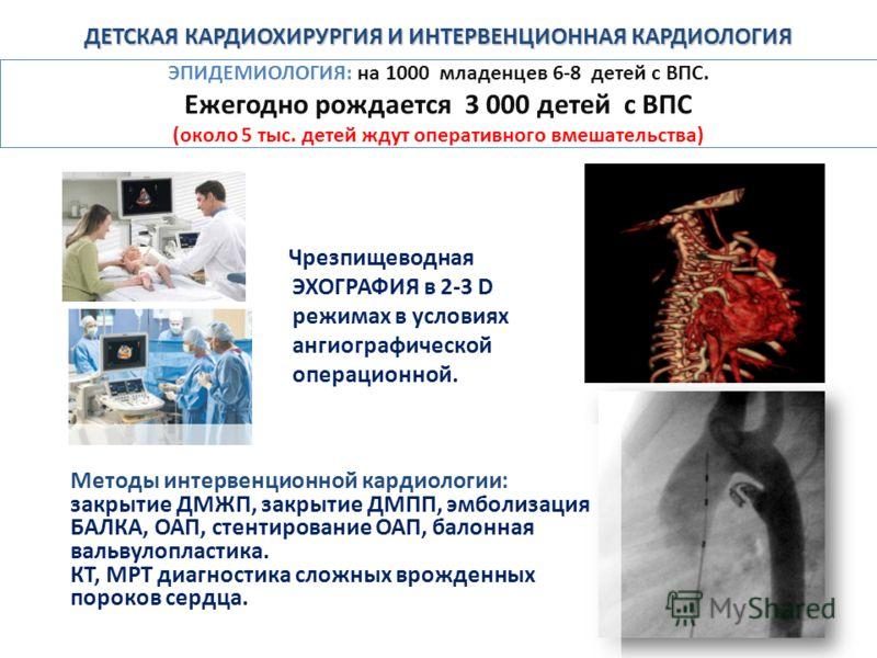 ЭПИДЕМИОЛОГИЯ: на 1000 младенцев 6-8 детей с ВПС. Ежегодно рождается 3 000 детей с ВПС (около 5 тыс. детей ждут оперативного вмешательства) Чрезпищеводная ЭХОГРАФИЯ в 2-3 D режимах в условиях ангиографической операционной. Методы интервенционной кард