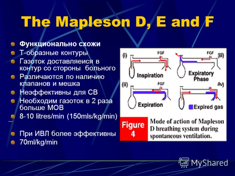 The Mapleson D, E and F Функционально схожи Т-образные контуры Газоток доставляеися в контур со стороны больного Различаются по наличию клапанов и мешка Неэффективны для СВ Необходим газоток в 2 раза больше МОВ 8-10 litres/min (150mls/kg/min) При ИВЛ