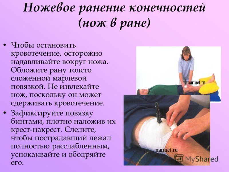 Ножевое ранение конечностей (нож в ране) Чтобы остановить кровотечение, осторожно надавливайте вокруг ножа. Обложите рану толсто сложенной марлевой повязкой. Не извлекайте нож, поскольку он может сдерживать кровотечение. Зафиксируйте повязку бинтами,