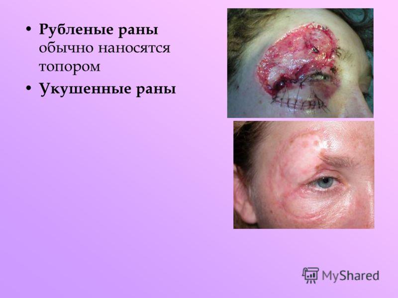 Рубленые раны обычно наносятся топором Укушенные раны