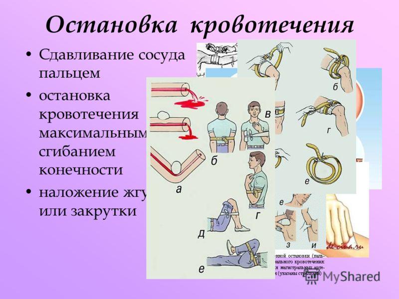 Остановка кровотечения Сдавливание сосуда пальцем остановка кровотечения максимальным сгибанием конечности наложение жгута или закрутки