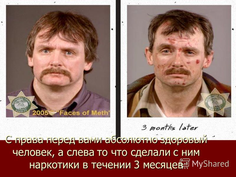 С права перед вами абсолютно здоровый человек, а слева то что сделали с ним наркотики в течении 3 месяцев