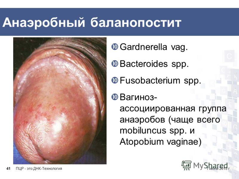 Анаэробный баланопостит Gardnerella vag. Bacteroides spp. Fusobacterium spp. Вагиноз- ассоциированная группа анаэробов (чаще всего mobiluncus spp. и Atopobium vaginae) ПЦР - это ДНК-Технология411 июля 2013 г.