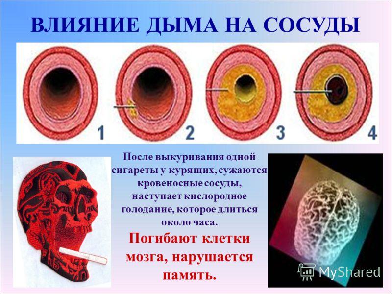 ВЛИЯНИЕ ДЫМА НА СОСУДЫ После выкуривания одной сигареты у курящих, сужаются кровеносные сосуды, наступает кислородное голодание, которое длиться около часа. Погибают клетки мозга, нарушается память.