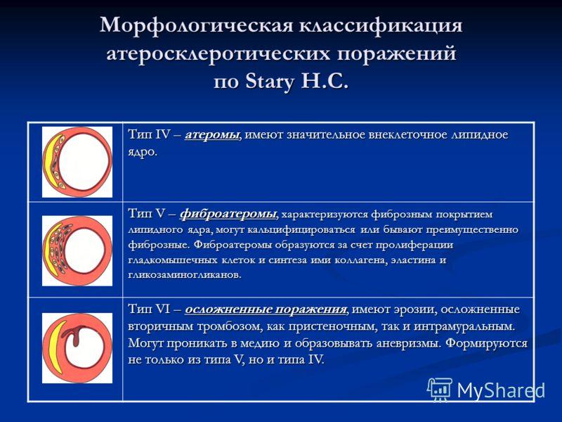 Морфологическая классификация атеросклеротических поражений по Stary H.C. Тип IV – атеромы, имеют значительное внеклеточное липидное ядро. Тип V – фиброатеромы, характеризуются фиброзным покрытием липидного ядра, могут кальцифицироваться или бывают п