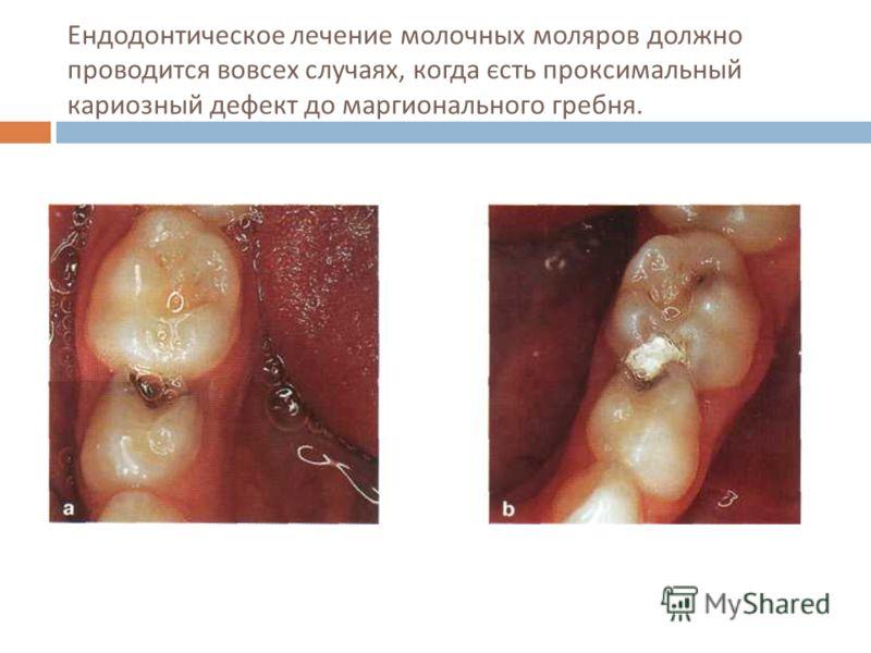 Ендодонтическое лечение молочных моляров должно проводится вовсех случаях, когда єсть проксимальный кариозный дефект до маргионального гребня.