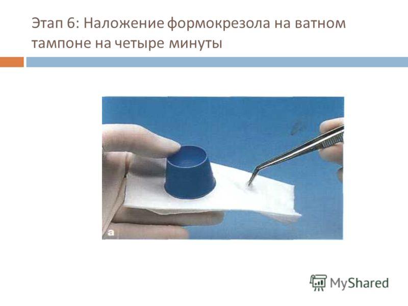 Этап 6: Наложение формокрезола на ватном тампоне на четыре минуты
