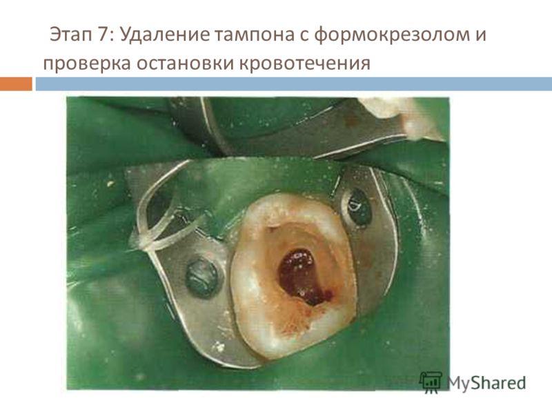 Этап 7: Удаление тампона с формокрезолом и проверка остановки кровотечения