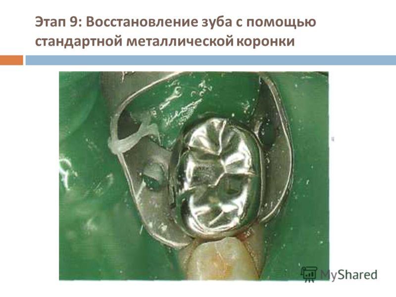 Этап 9: Восстановление зуба с помощью стандартной металлической коронки