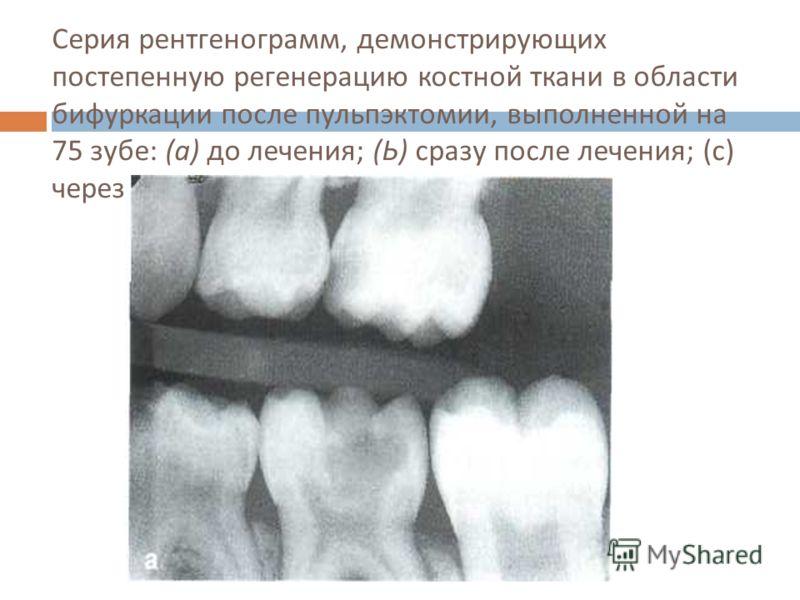 Серия рентгенограмм, демонстрирующих постепенную регенерацию костной ткани в области бифуркации после пульпэктомии, выполненной на 75 зубе : ( а ) до лече  ния ; ( Ь ) сразу после лечения ; ( с ) через З мес ; (d) через год.