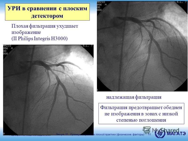Радиационная защита в кардиологии МАГАТЭ 11 надлежащая фильтрация Плохая фильтрация ухудшает изображение (II Philips Integris H3000) УРИ в сравнении с плоским детектором Фильтрация предотвращает обеднен ие изображения в зонах с низкой степенью поглощ