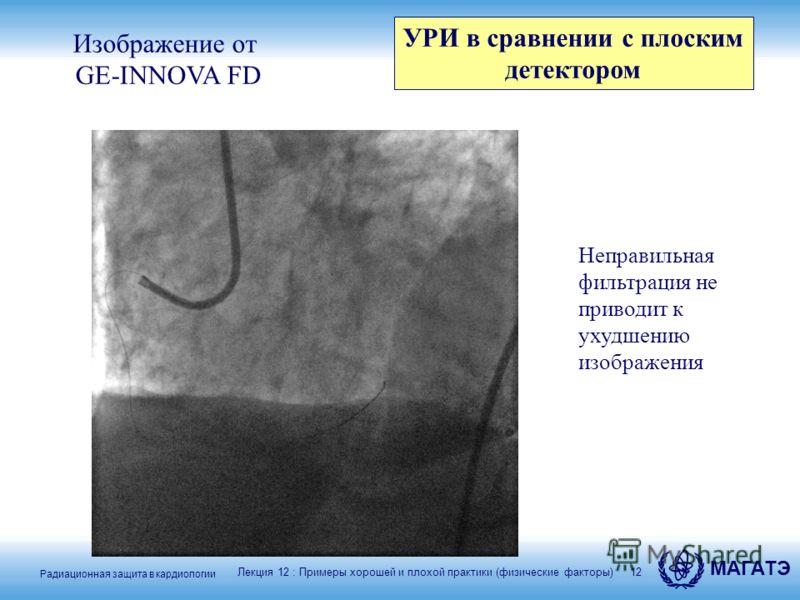 Радиационная защита в кардиологии МАГАТЭ 12 Изображение от GE-INNOVA FD Неправильная фильтрация не приводит к ухудшению изображения Лекция 12 : Примеры хорошей и плохой практики (физические факторы) УРИ в сравнении с плоским детектором