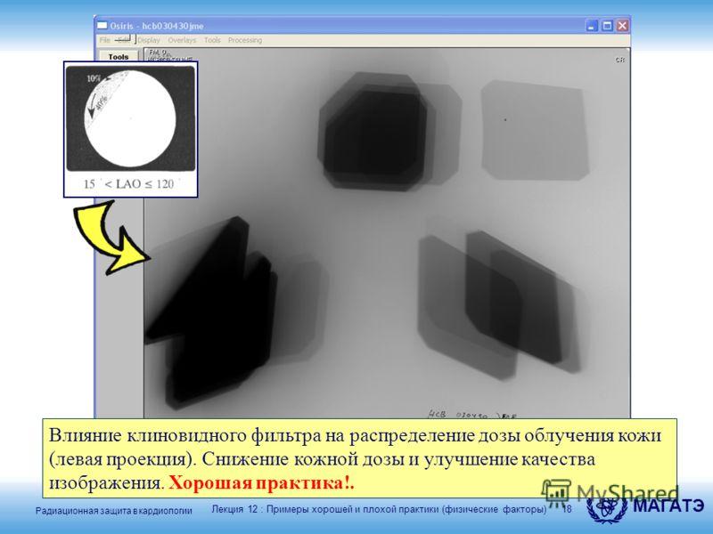 Радиационная защита в кардиологии МАГАТЭ 18 Лекция 12 : Примеры хорошей и плохой практики (физические факторы) Влияние клиновидного фильтра на распределение дозы облучения кожи (левая проекция). Снижение кожной дозы и улучшение качества изображения.