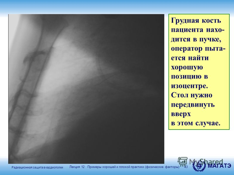 Радиационная защита в кардиологии МАГАТЭ 43 Грудная кость пациента нахо- дится в пучке, оператор пыта- ется найти хорошую позицию в изоцентре. Стол нужно передвинуть вверх в этом случае. Лекция 12 : Примеры хорошей и плохой практики (физические факто