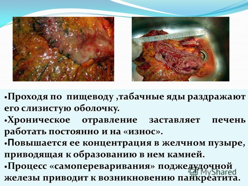 Проходя по пищеводу,табачные яды раздражают его слизистую оболочку. Проходя по пищеводу,табачные яды раздражают его слизистую оболочку. Хроническое отравление заставляет печень работать постоянно и на «износ». Хроническое отравление заставляет печень