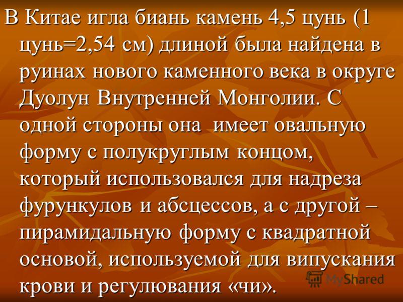 В Китае игла биань камень 4,5 цунь (1 цунь=2,54 см) длиной была найдена в руинах нового каменного века в округе Дуолун Внутренней Монголии. С одной стороны она имеет овальную форму с полукруглым концом, который использовался для надреза фурункулов и