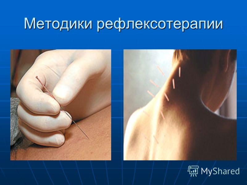 Методики рефлексотерапии