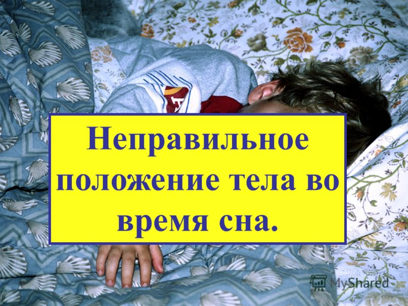 Неправильное положение тела во время сна.