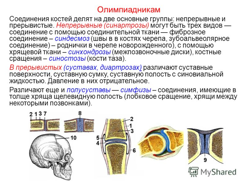 Соединения костей делят на две основные группы: непрерывные и прерывистые. Непрерывные (синартрозы) могут быть трех видов соединение с помощью соединительной ткани фиброзное соединение – синдесмоз (швы в в костях черепа, зубоальвеолярное соединение)