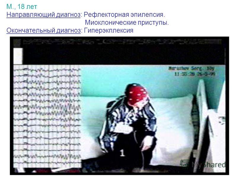 М., 18 лет Направляющий диагноз: Рефлекторная эпилепсия. Миоклонические приступы. Окончательный диагноз: Гиперэкплексия