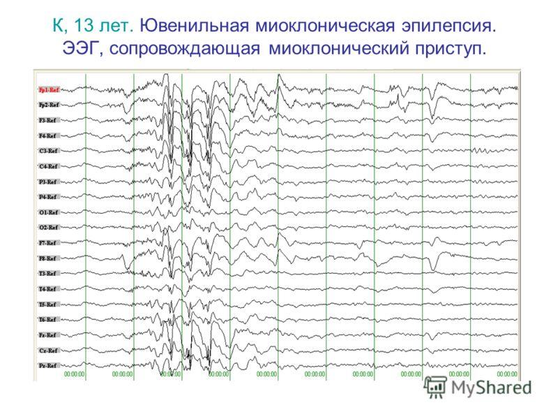К, 13 лет. Ювенильная миоклоническая эпилепсия. ЭЭГ, сопровождающая миоклонический приступ.