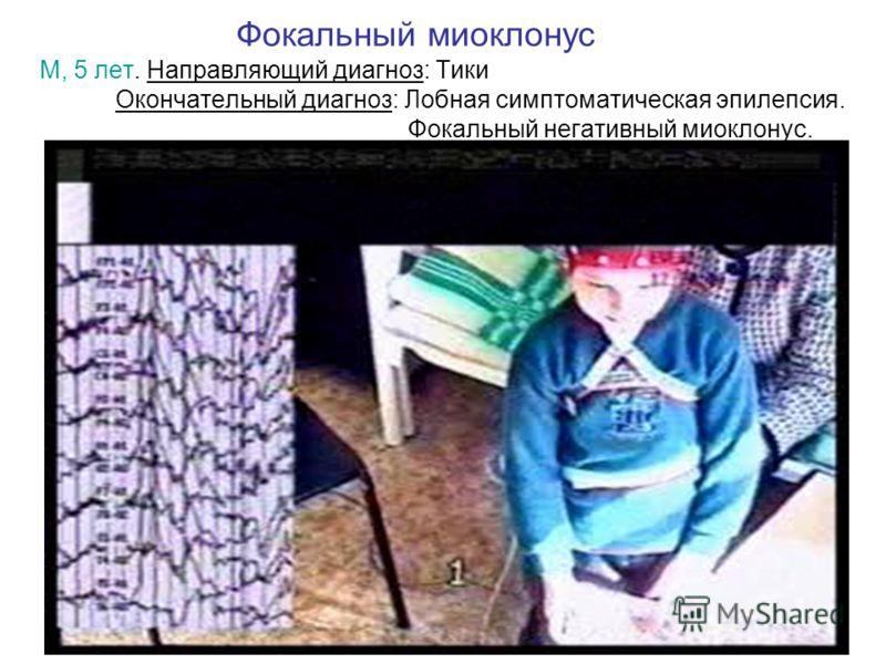 Фокальный миоклонус М, 5 лет. Направляющий диагноз: Тики Окончательный диагноз: Лобная симптоматическая эпилепсия. Фокальный негативный миоклонус.