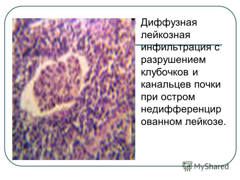 Диффузная лейкозная инфильтрация с разрушением клубочков и канальцев почки при остром недифференцир ованном лейкозе.