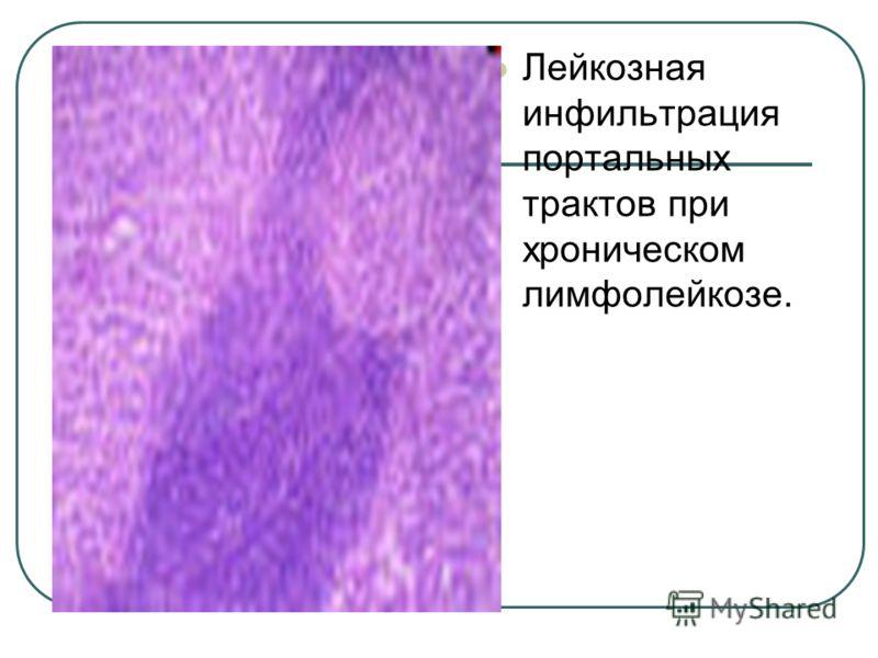 Лейкозная инфильтрация портальных трактов при хроническом лимфолейкозе.