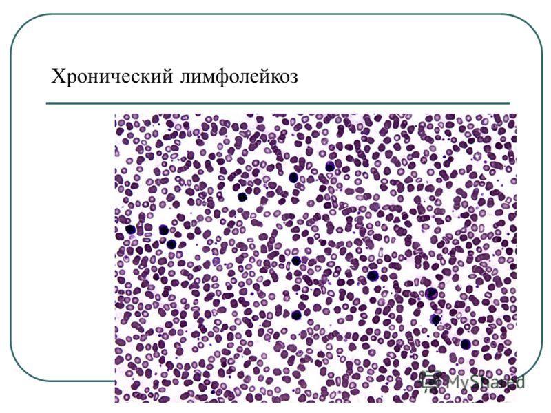 Хронический лимфолейкоз