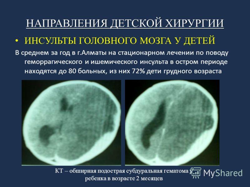 НАПРАВЛЕНИЯ ДЕТСКОЙ ХИРУРГИИ ИНСУЛЬТЫ ГОЛОВНОГО МОЗГА У ДЕТЕЙ В среднем за год в г.Алматы на стационарном лечении по поводу геморрагического и ишемического инсульта в остром периоде находятся до 80 больных, из них 72% дети грудного возраста КТ – обши
