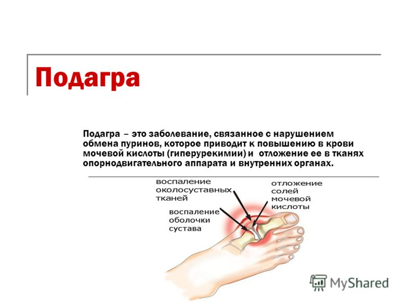 Подагра Подагра – это заболевание, связанное с нарушением обмена пуринов, которое приводит к повышению в крови мочевой кислоты (гиперурекимии) и отложение ее в тканях опорнодвигательного аппарата и внутренних органах.