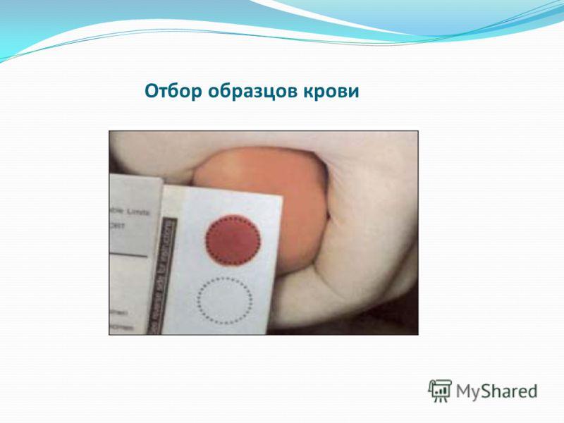 Отбор образцов крови