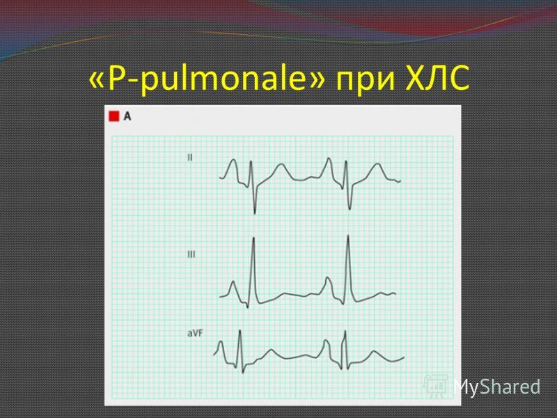 «P-pulmonale» при ХЛС