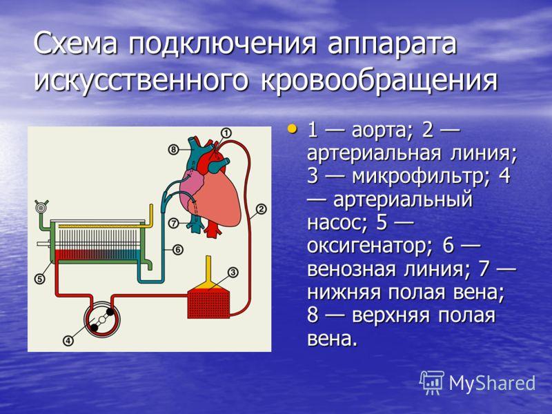Схема подключения аппарата искусственного кровообращения 1 аорта; 2 артериальная линия; 3 микрофильтр; 4 артериальный насос; 5 оксигенатор; 6 венозная линия; 7 нижняя полая вена; 8 верхняя полая вена. 1 аорта; 2 артериальная линия; 3 микрофильтр; 4 а