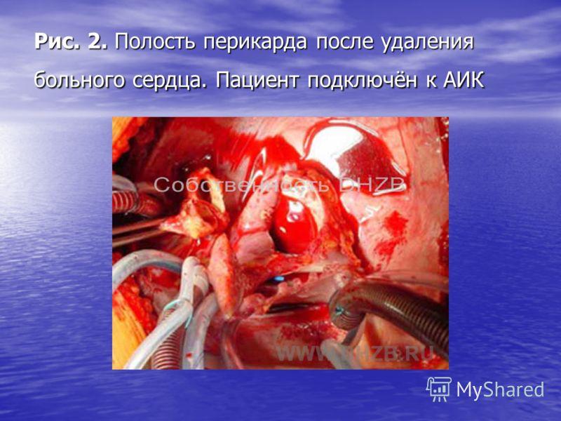 Рис. 2. Полость перикарда после удаления больного сердца. Пациент подключён к АИК