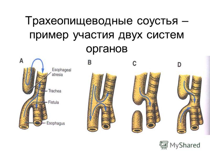 Трахеопищеводные соустья – пример участия двух систем органов